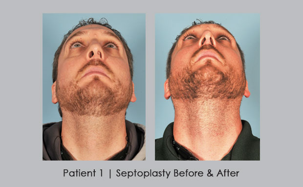 Before and after photos of septoplasty, patient 1 | Dr. William E. Silver