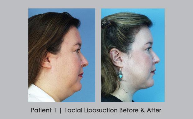 Before and After Photos of Facial Liposuction | Dr. William E. Silver