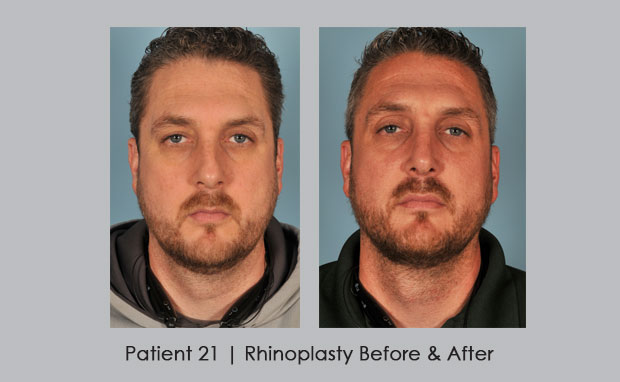 Before and After photos of Nose Reshaping | Dr. William E. Silver