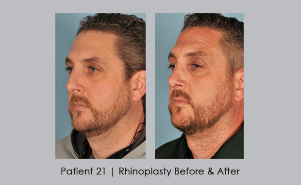 Rhinoplasty Before and After Photos | Dr. Silver | Brookhaven, GA