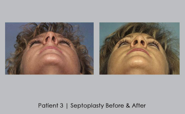 Septoplasty before and afters | Dr. William E. Silver
