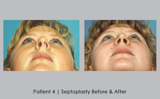 Before and after photos of septoplasty | Dr. Silver