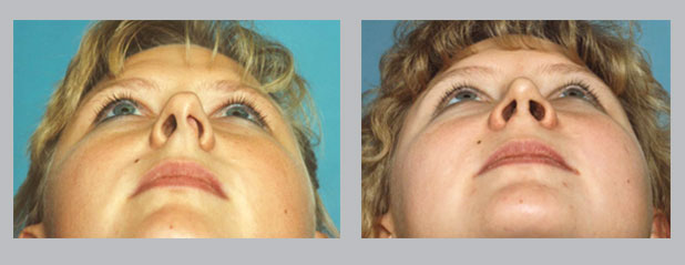 photos of a deviated septum corrected by Dr. William E. SIlver