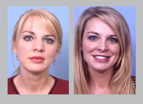 Before and after photos of wide nose rhinoplasty | Dr. Silver