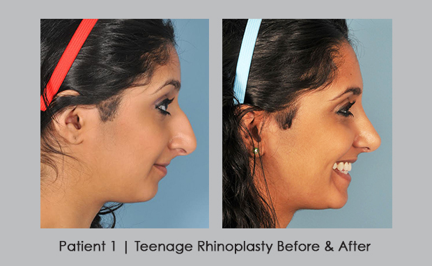 Before and after photos showing teenage rhinoplasty | Dr. William Silver, M.D.