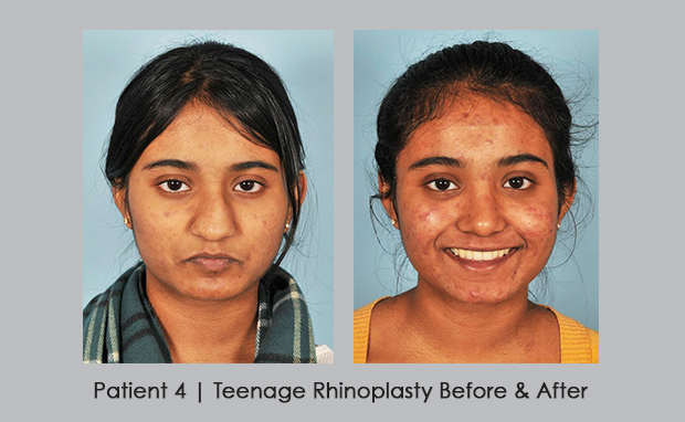 teenage rhinoplasty | before and after | Dr. William Silver, M.D.