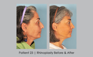 before and after photos of nose reshaping, side view | Dr. William Silver