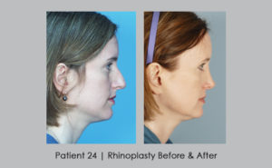 before and after photos of rhinoplasty | Dr. William Silver