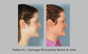 photos showing before and after photos of teenage rhinoplasty | William E. Silver, MD