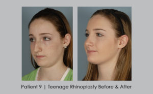 photo showing before and after photos of teenage rhinoplasty | Atlanta area