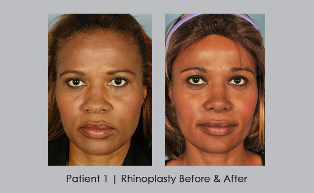 before and after photos showing African American Rhinoplasty | Dr. Silver
