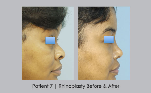 Before and After Photos of African American Nose Job | Dr. SIlver