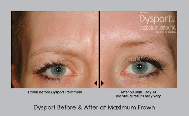 Dysport Before and After photos | Dr. William Silver