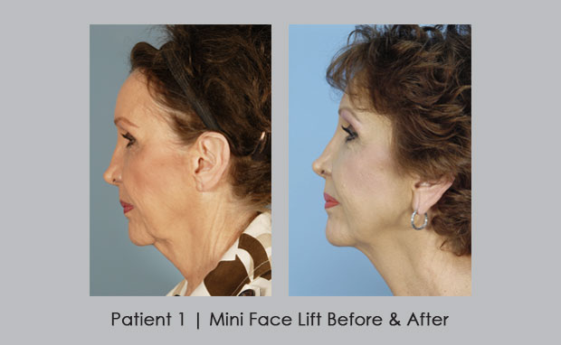 before and after photos of a mini facelift | Dr. Silver