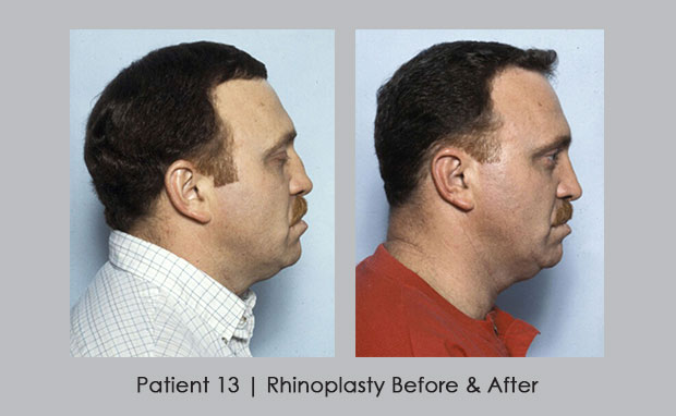 A broken nose can be reconstructed through rhinoplasty | Dr. William Silver