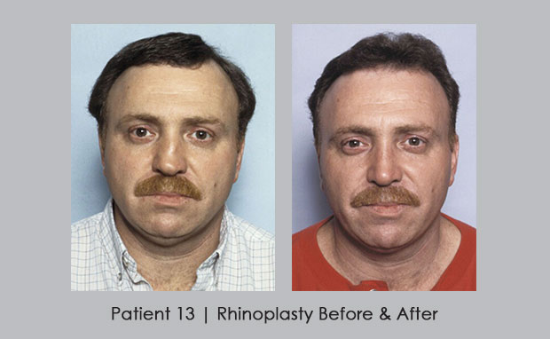 Photos showing a repaired broken nose | Dr. Silver