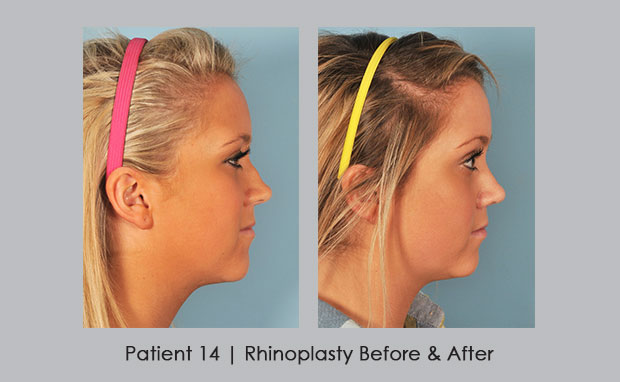 Before and After photos of rhinoplasty, patient 14 | Dr. Silver