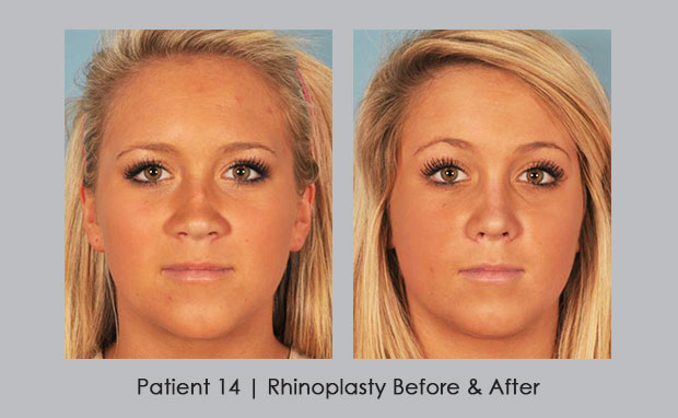 Before and Afters of Rhinoplasty by Dr. Silver