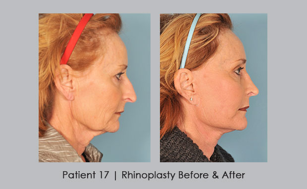 Before and After photos showing Rhinoplasty | Dr. William Silver