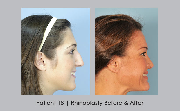 Rhinoplasty Before and After Photos, Patient 18, View 2 | Dr. Silver