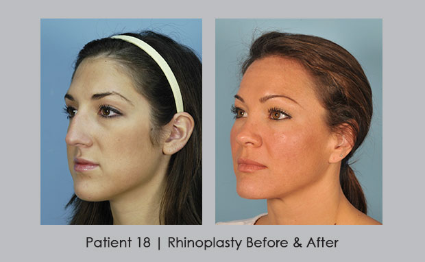 Rhinplasty Before and Afters , Patient 18, View 3 | Dr. Silver