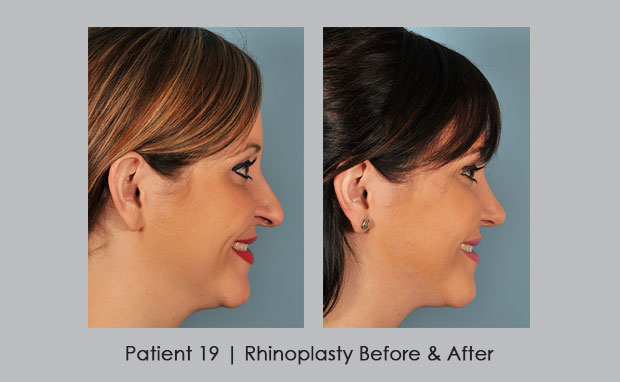 Before and afters of rhinoplasty | Dr. William E. Silver