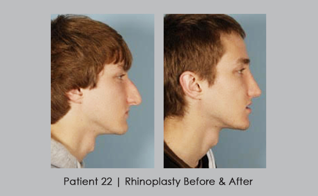 before and after photos of rhinoplasty | Dr. Silver