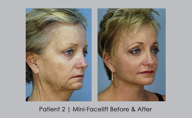 Before and Afters of a Mini-Facelift, patient 2 | Dr. Silver