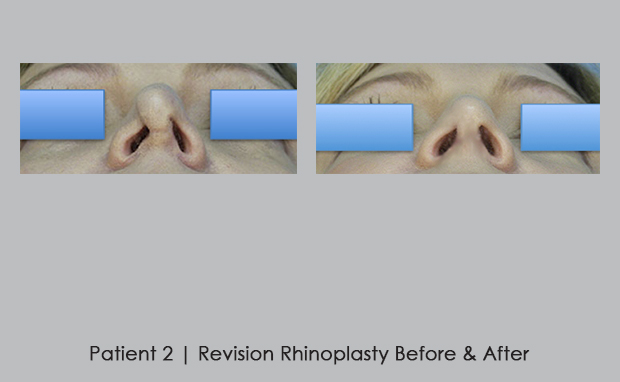 before and after photos of revision rhinoplasty | Dr. William Silver | Atlanta, GA