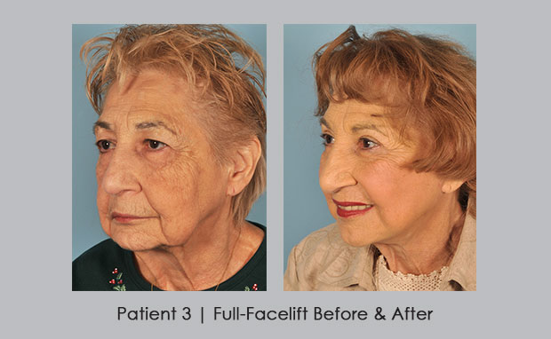 Before and Afters of a Full-Facelift , View 2 | Dr. Silver