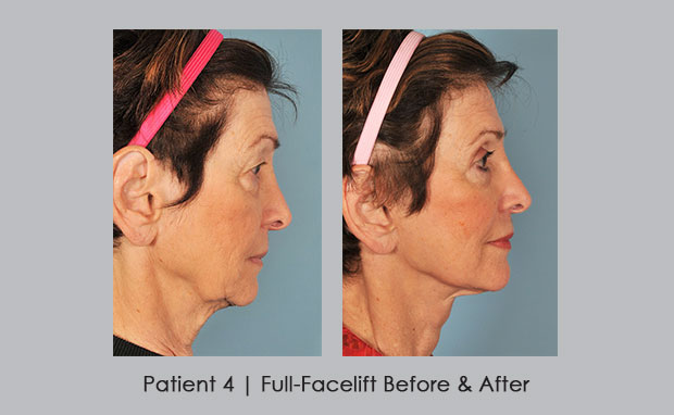 Before and Afters of a Full-facelift, patient 4 | Dr. Silver