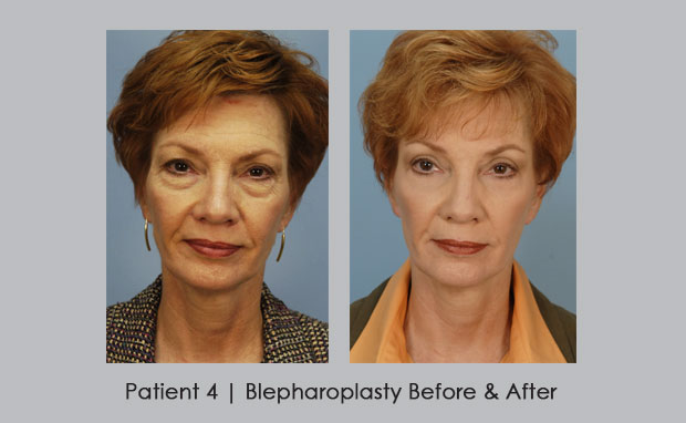 Blepharoplasty | Dr. William E. Silver | Atlanta, GA