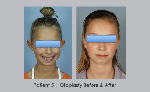 Before and After Photos of Otoplasty | View 1