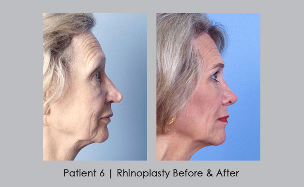 Before and after photos of rhinoplasty | Patient 6 | Dr. Silver
