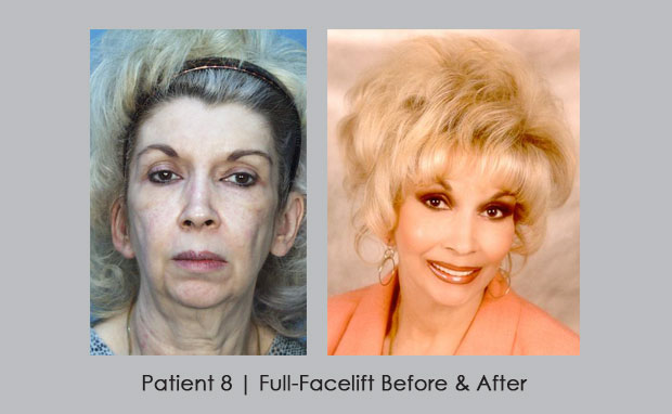 Full-Facelift Before and After Photos | Dr. William E. SIlver
