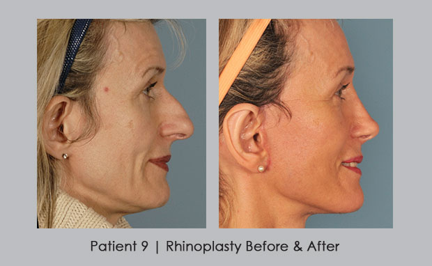 Before and after profile photos of rhinoplasty | Patient 9 | Dr. Silver
