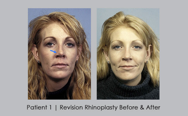 Before and After Photos of Revision Rhinoplasty | Patient 1