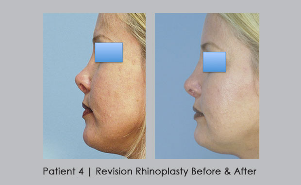 Dr. William Silver performs revision rhinoplasty | Dunwoody, GA