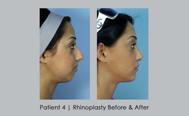 Rhinoplasty Before and After photos | Patient 4 | Dr. Silver