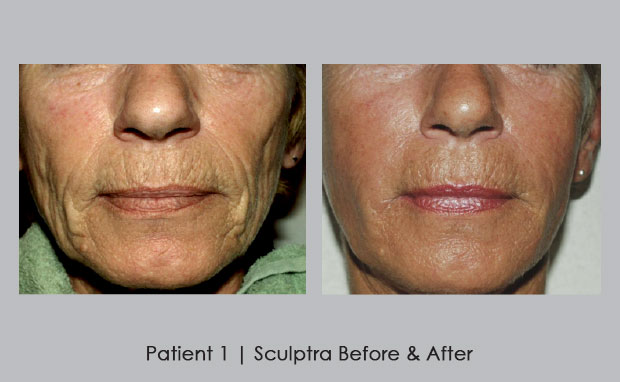 Image result for sculptra before and after