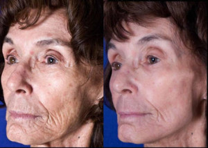 Fractional CO2 Laser Resurfacing, Atlanta, Ga