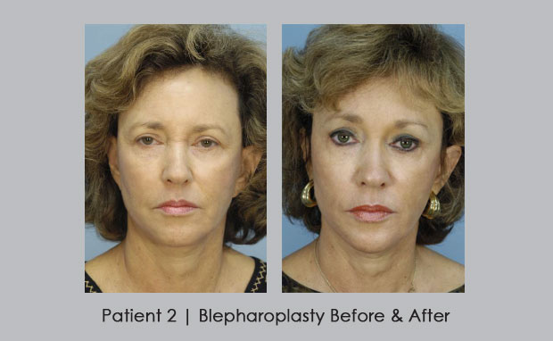 Blepharoplasty Before and After photos | Dr. William Silver