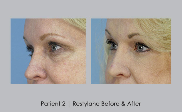 photos of Restylane Before and Afters | Dr. Silver