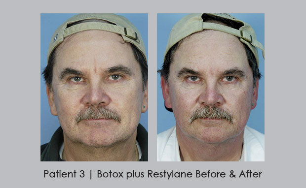 Before and After photos of Botox plus Restylane | Dr. Silver