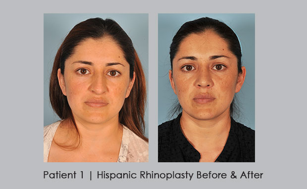 Before and after photos showing hispanic rhinoplasty | Dr. Silver