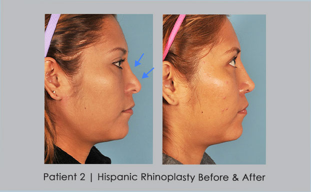 Before and After photos of Hispanic Rhinoplasty | Dr. William Silver | Atlanta, GA