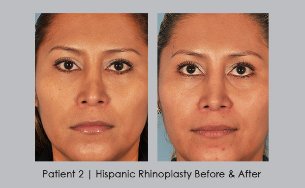 Side view before and after photos of hispanic rhinoplasty | Dr. Silver
