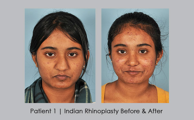 Before and After photos of Indian Rhinoplasty | Dr. Silver