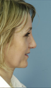 rhinoplasty after, Atlanta, GA