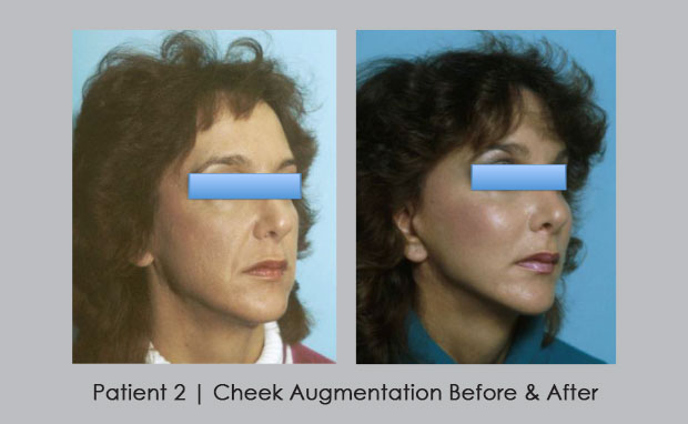Before and After photos of Cheek Augmentation | Dr. William E. Silver